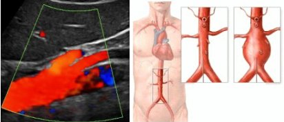Doppler color de Aorta Abdominal